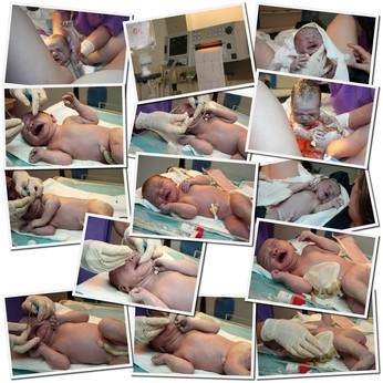 Zdjęcia noworodka z sali porodowej